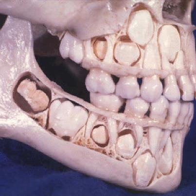 A child's skull before losing baby teeth!! Zo groeien tanden voordat ze wisselen. #orthodontie door de #orthodontist - kwaliteit en veiligheid geven je zekerheid van een goede beugelbehandeling. Bas Njio www.smilelounge.nl