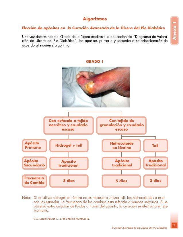 Curacion avanzada del pie diabetico