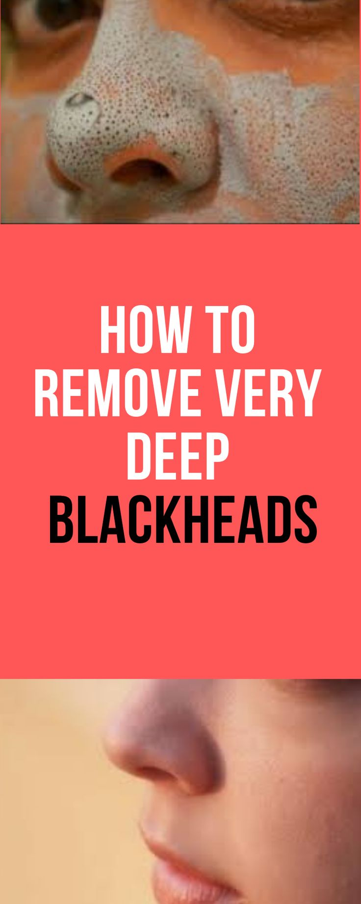 How to Remove Very Deep Blackheads