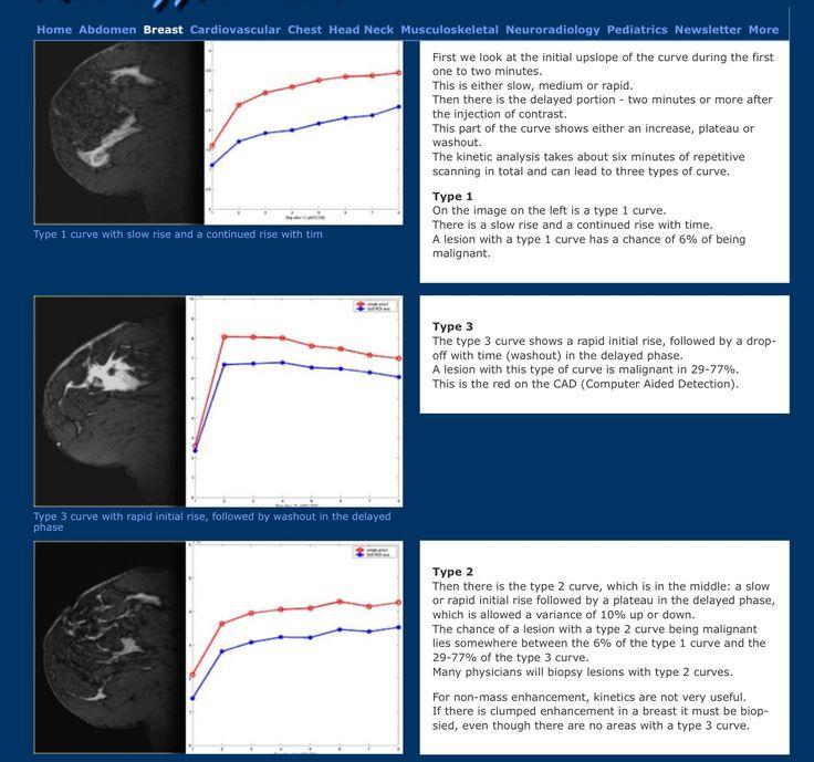 Best Breast Ultrasound Image Images On   Ultrasound
