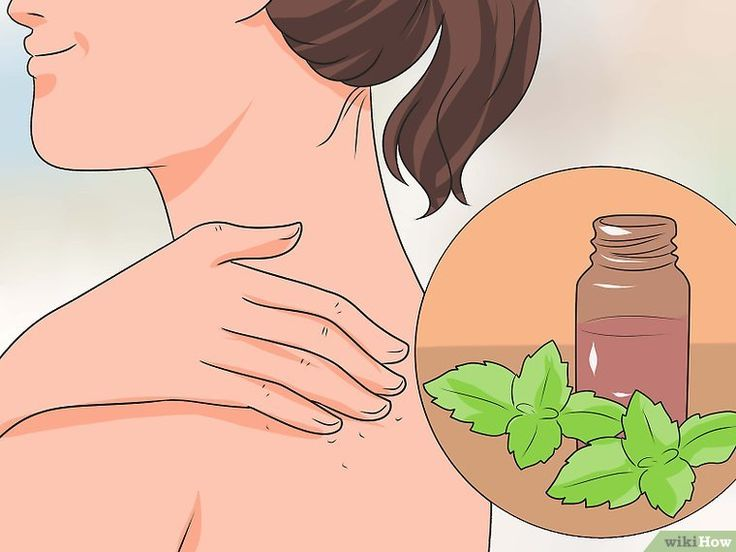 3 Ways to Get Rid of an Itchy Sunburn (Fair Skin) - wikiHow