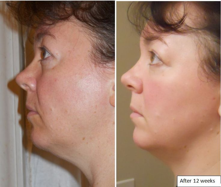 Before and after 12 weeks of Luminesce cellular regeneration serum!