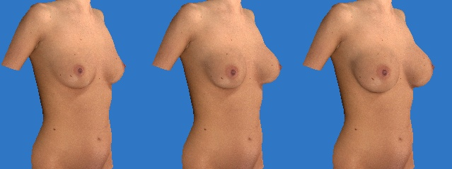 An example of Breast Augmentation with the Vectra 3D imaging system.