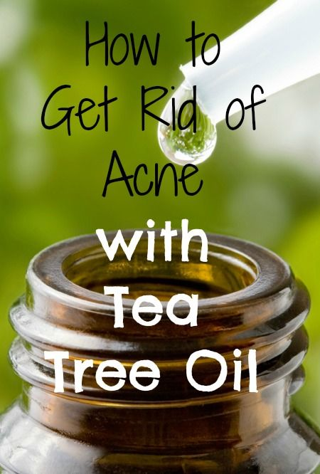 122 best images about best way to get rid of acne on pinterest tea tree oil acne remedies and. Black Bedroom Furniture Sets. Home Design Ideas