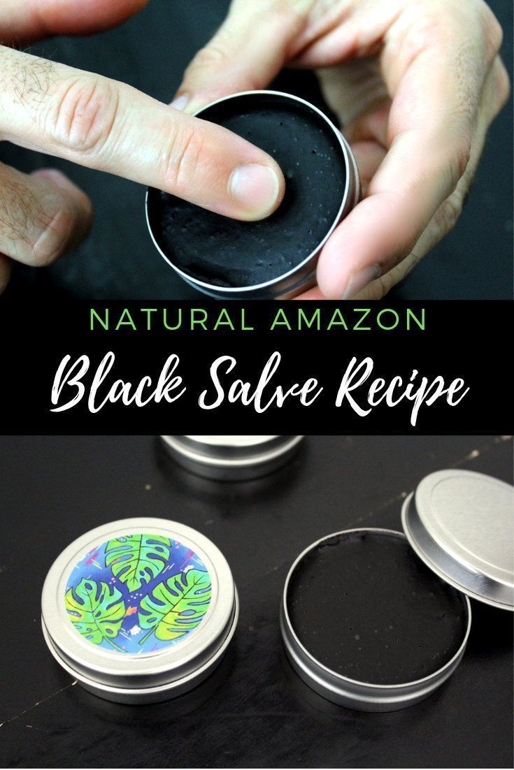 Diy Amazon Black Drawing Salve This Natural Holistic Amazon Black Salve Recipe Offers An Exciting Twist Off Traditiona Salve Recipes Black Drawing Salve Salve