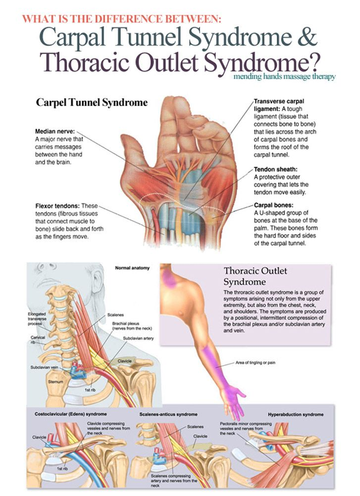 Carpal Tunnel Syndrome Vs. Thoracic Outlet Syndrome: a pain in the hand (and arm). A common issue for those in interpreting. Repinned by  SOS Inc. Resources  http://pinterest.com/sostherapy.