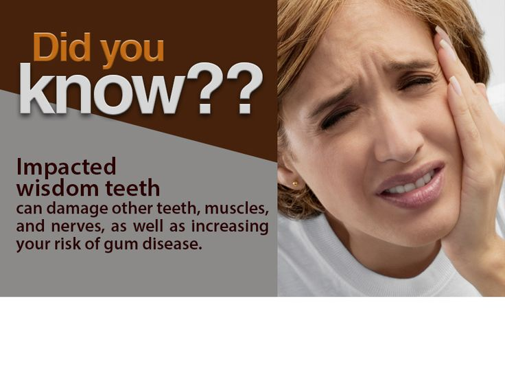 Wisdom Teeth Symptoms that Indicate Time Extraction