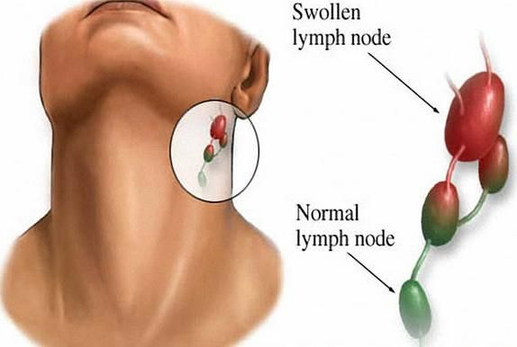 Lymphoma Treatment Lymphoma Treatment Centre Treatment for Lymphoma