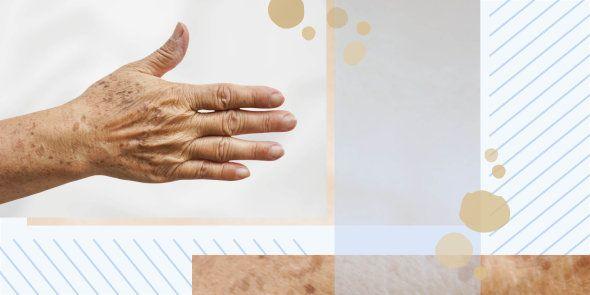 Dr. Jetske Ultee - Blog over huidverzorging | Je handen kunnen je leeftijd veraden, hoe je je handen weer jaren jonger krijgt... #trueage #age #skincare #hands #hand #younger #vitaminC #spots #sunscreen #DIY #antiaging #skin #tips