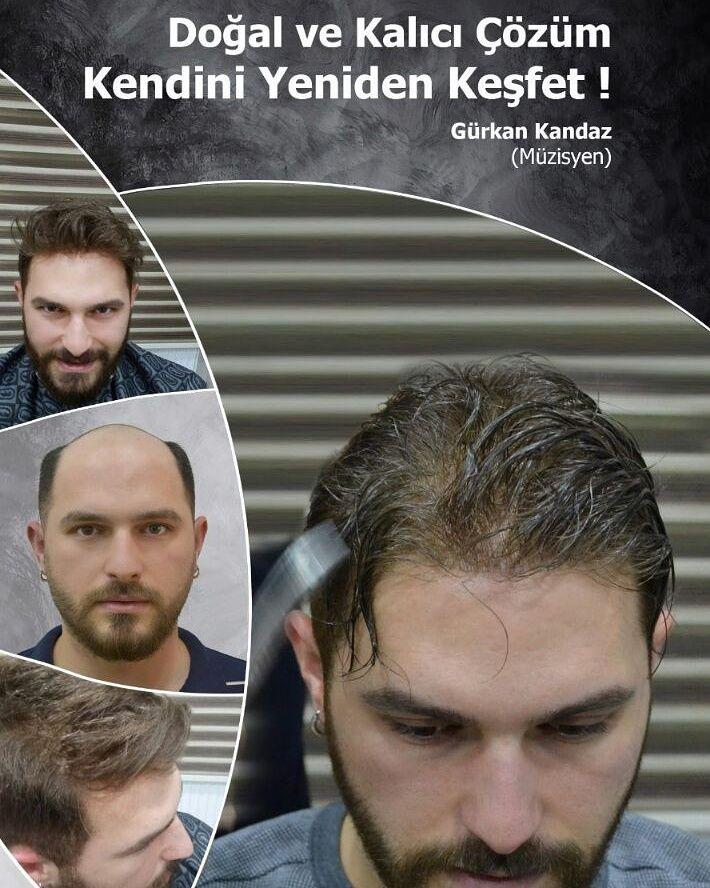 En doğal protez saç nasıl olmalı?Protez saç nedir?En doğal protez saç kişinin ense bölgesinde bulunan ana saçından kopyalama işlemi ile yapılan saçtır.Doğal protez saç kullanıcı kişinin teni ve kendi doğal saçıyla uyumlu olmalıdır.Tamamen saçlarını (total alopesi) kaybetmiş kişilere doğal protez saç uygulanır mı? Tamamen saçlarını kaybetmiş kişilere de protez saç uygulaması yapılır.Saç sorunu yaşayan kişi protez saç merkezine geldiğinde beğendiği bir saç modeli resmi getirebilir. aynısından…