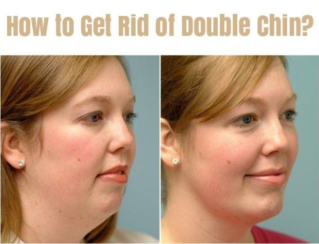 how to avoid face fat
