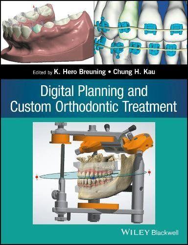 Digital Planning and Custom Orthodontic Treatment Pdf Download e-Book