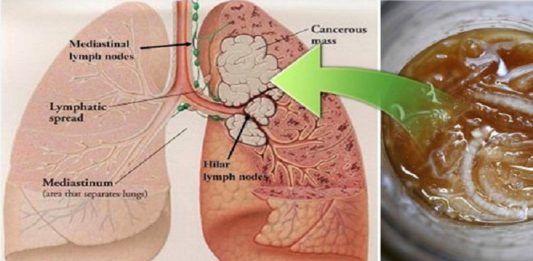 Очистить свои легкие от смол, никотина и предотвратить рак можно с помощью этого древнего эликсира!