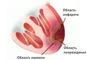 Как распознать инфаркт миокарда. http://www.etolen.com/index.php?option=com_content&view=article&id=4495&Itemid=101