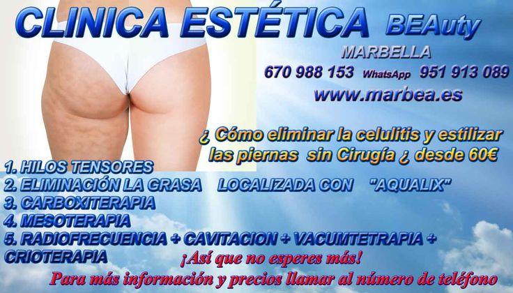 REDUCIR CELULITIS MUSLOS MARBELLA , CARBOXITERAPIA CELULITIS MARBELLA , LA RADIOFRECUENCIA FACIAL MARBELLA  http://www.marbea.es/ , TRATAMIENTOS DE RADIOFRECUENCIA FACIAL MARBELLA , RADIOFRECUENCIA FACIAL Y CORPORAL MARBELLA , QUE ES RADIOFRECUENCIA FACIAL MARBELLA , RADIOFRECUENCIA CORPORAL MARBELLA , CELULITIS ESTETICA MARBELLA , ESTETICA HOMBRES MARBELLA , CENTROS DE MEDICINA ESTETICA CENTRO ESTÉTICO MARBELLA , ESTETICA FACIAL MARBELLA , REDUCCION DE MUSLOS SIN CIRUGIA MARBELLA ,