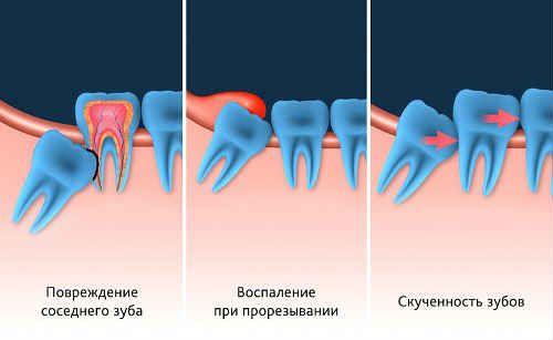 удалять ли зубы мудрости