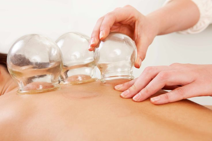 Athletes and Cupping: Does t work?