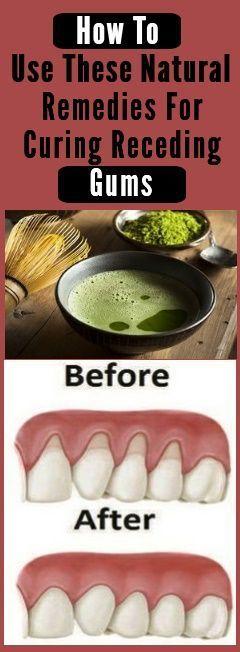 how to help receding gums