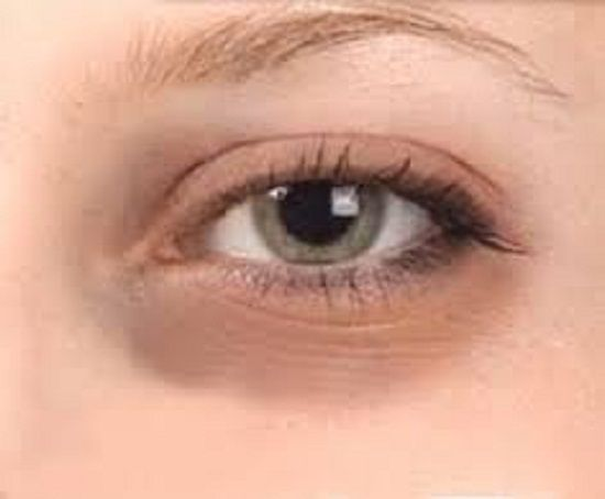 Dark circles under eye gives us tired and aged look  De pigmenting creams such as retinoic and ascorbic acid reduces discoloration.   Read more about skin care, visit: http://lisaskinclinic.com/