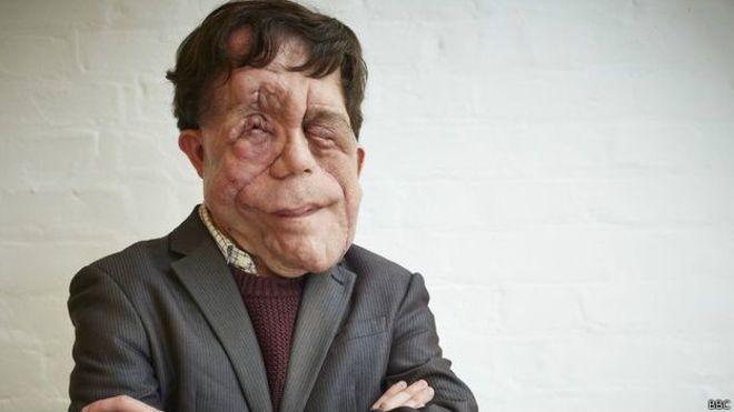 Britânico desfigurado por tumores relata cotidiano de olhares e agressões - BBC Brasil