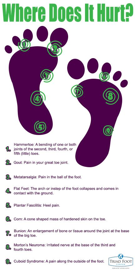 Where does your foot hurt? | Podiatry Infographics ...
