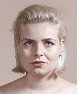 Jitske Nap (26) Laat haar bovenlip opspuiten en heeft haar voorhoofd laten doen.