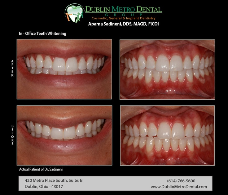 In Office Teeth Whitening Smile Even Brighter On Your