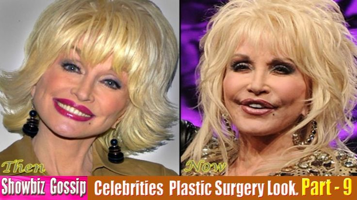 101 Celebrities Plastic Surgery Before and After Look. (81-90) | Part - 9.