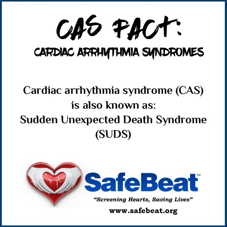 Cardiac arrhythmia syndrome is also known as:  Sudden Unexpected Death Syndrome (SUDS)