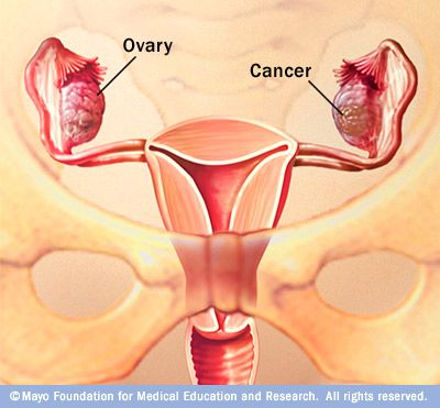 What is ovarian cancer? A detailed guide, with illustrations.