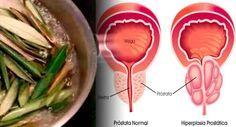 La próstata es un órgano del sistema reproductor del varón. Es una glándula, con forma de castaña, ubicada debajo de la vejiga y por delante del recto. La uretra (conducto por donde sale la orina) atraviesa la próstata por el centro, de manera que la orina sale de la vejiga atravesando la próstata. Anuncios La ocupación principal de la próstata es producir un líquido que se une al semen para mejorar la calidad de los espermatozoides y aumentar la fertilidad. El problema es debido a su lugar…