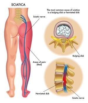 sciatic nerve compression | Common Sciatica Cause #1: Lumbar Bulging Disc or Herniated Disc