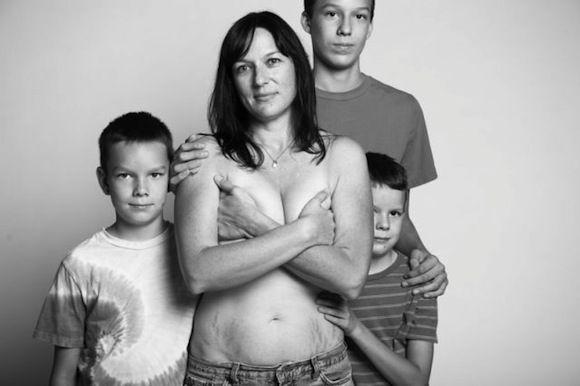 Fotógrafa faz homenagem a corpos reais de pós parto | Macetes de Mãe