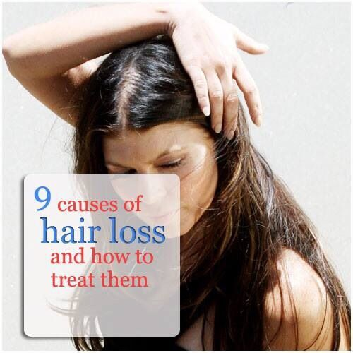 9 Causes of Hair Loss in Women and How to Treat Them # ...
