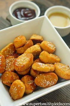 Soft Pretzel Bites Recipe (Allergy Free)