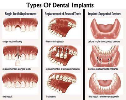 Tipos de #implantes #dentista www.clinicadentalmagallanes.com