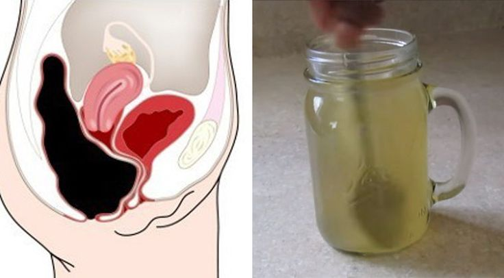 Natural Colon Cleanse  Ingredients: Raw honey, 2 tablespoons Apple cider vinegar, 2 tablespoons Warm water, 8 ounces