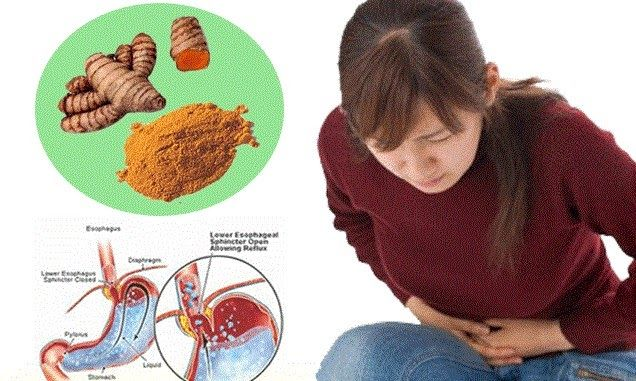 Maagatau radang lambung atau tukak lambung adalah gejala penyakit yang menyerang lambung dikarenakan terjadi luka atau peradangan pada lambung yang menyebabkan sakit mulas dan perih pada perut.  Hampir setiap orang pernah mengalami gangguan maag. Penyakit ini ada yang ringan namun ada pula yang akut alias kronis dan sampai bisa menyebabkan kematian. Maag ringan akan mereda dengan sendirinya.  Maag kronis ini terjadi apabila ada bakteri yang masuk dan hidup dalam dinding lambung. Iniakan bisa…