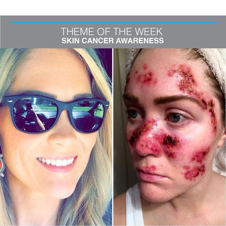 14 Best Skin Cancer Awareness Images On Pinterest  Cancer -2144