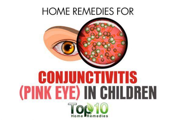 Home Remedies for Conjunctivitis (Pink Eye) in Children