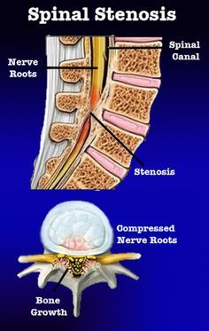What is Stenosis of the Spine?