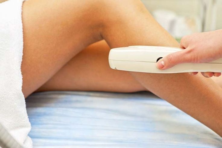 Laser Hair Removal  Is It Effective   Laser  Epilation  Fast  Bodies  Well      Bodies