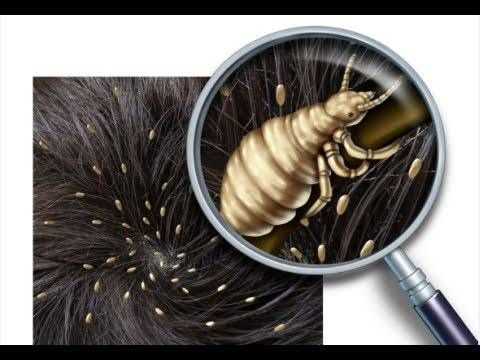 Rubbing alcohol is also great for removing lice. Fill a spray bottle with alcohol and add a few drops of lavender oil. Go outside and apply the mixture generously to your scalp and hair. Comb your hair to remove the dead lice. The Wisconsin Division of Public Health recommends to leave used lice combs soaking in the mixture for at least 1 hour to make sure all the bugs are taken care of.