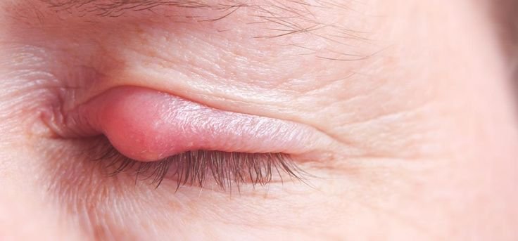 Pimple on eyelid, also known as eye stye is a condition wherein the eyelid edge gets infected & swollen. Know its eruption & ways to get rid of eyelid pimples.