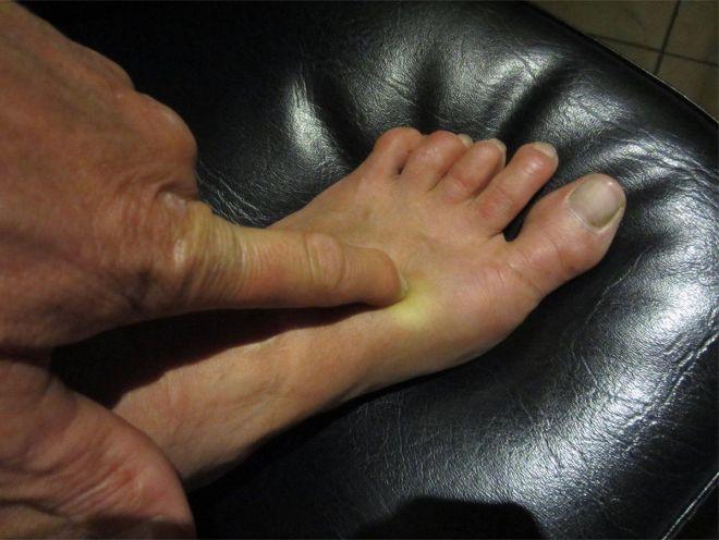 Moeite met slapen? Druk met je wijsvinger op DIT speciale punt op je voeten en het volgende zal gebeuren..... - Zelfmaak ideetjes