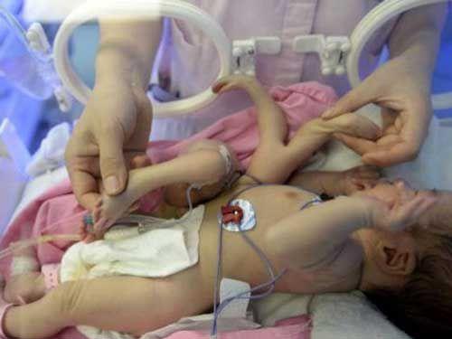 AΝΕΞΑΡΤΗΤΟΣ-ΔΙΠΛΩΜΑΤΙΚΟΣ ΠΑΡΑΤΗΡΗΤΗΣ: ΜΩΡΟ ΓΕΝΝΗΘΗΚΕ ΜΕ 4 ΠΟΔΙΑ ΚΑΙ 4 ΧΕΡΙΑ! ΕΙΚΟΝΕΣ ΠΟΥ...