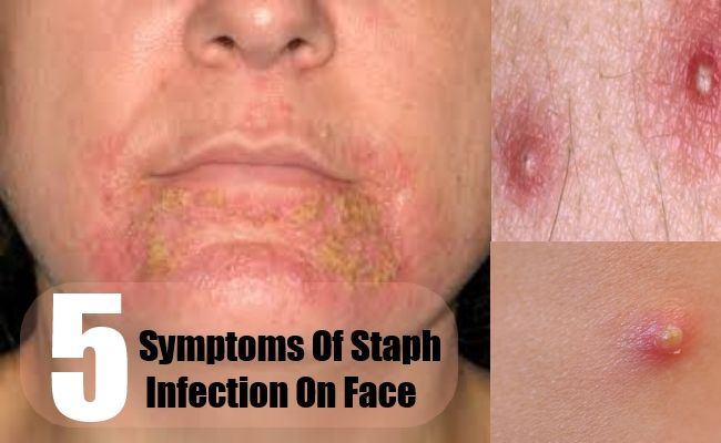 Examples of staph infections