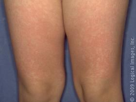Picture of Fifth Disease (Erythema Infectiosum) on the leg. This image displays red, fluid-filled bumps typical of fifth disease.