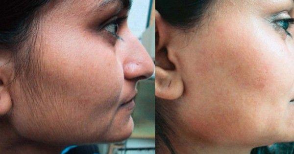 Quand on parle d'épilation, on pense aux femmes qui ont toujours ce soucis de se faire belle et garder une peau lisse. Et lorsqu'il s'agit du visage, elles ont recours à tous les moyens pour enlever les poils. Voici une technique, utilisée depuis des siècles par les femmes du Moyen-Orient, pour...