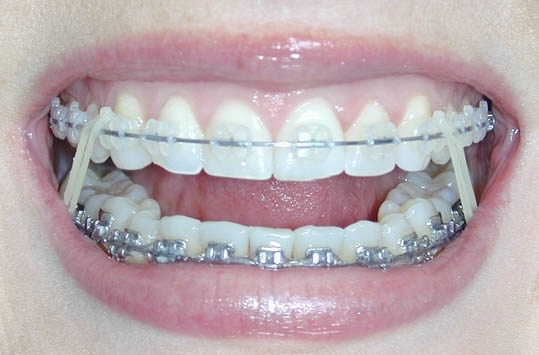 Braces worth every penny.  This is finally how my teeth look!  Coming off next month if i remember my rubberbands.